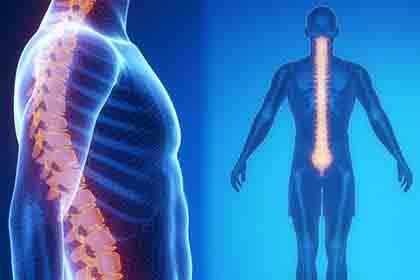 Perito-Medico-Lesiones-y-daños-de-Medula