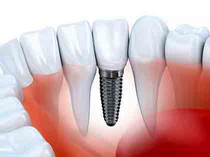 Implantes dentales - Perito Implantes dentales