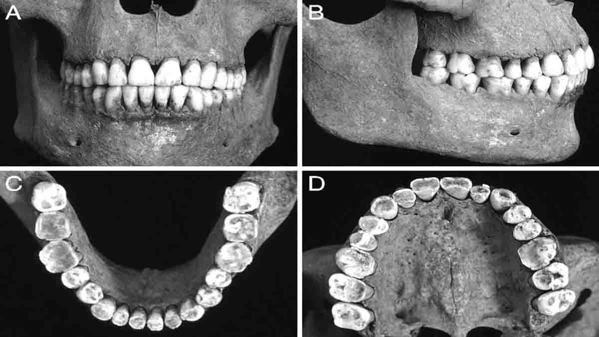 Perito en Odontología Forense y legal. Identificación