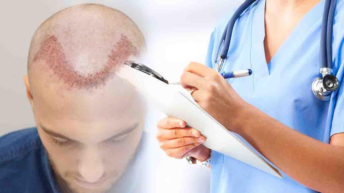 Perito en Injertos capilares. Lesiones y daños reclamables