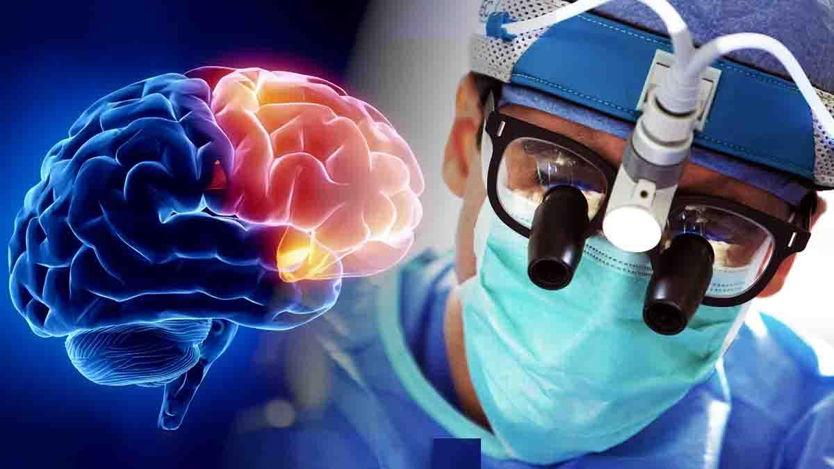 Perito Neurocirujano - Neurocirugía