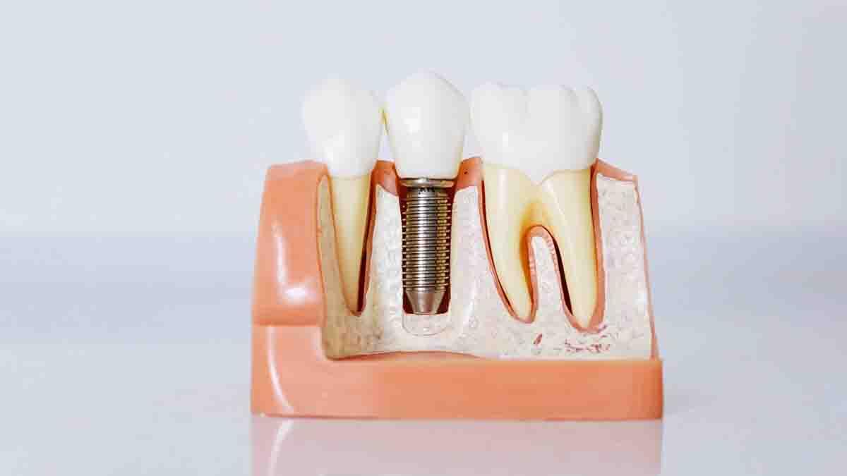 Perito en Implantes Dentales: rechazo, alergias, roturas