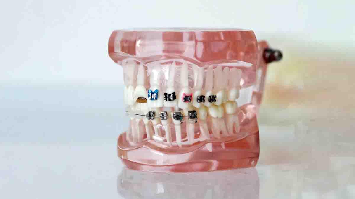Perito en Ortodoncia y corrección de dientes. Negligencias