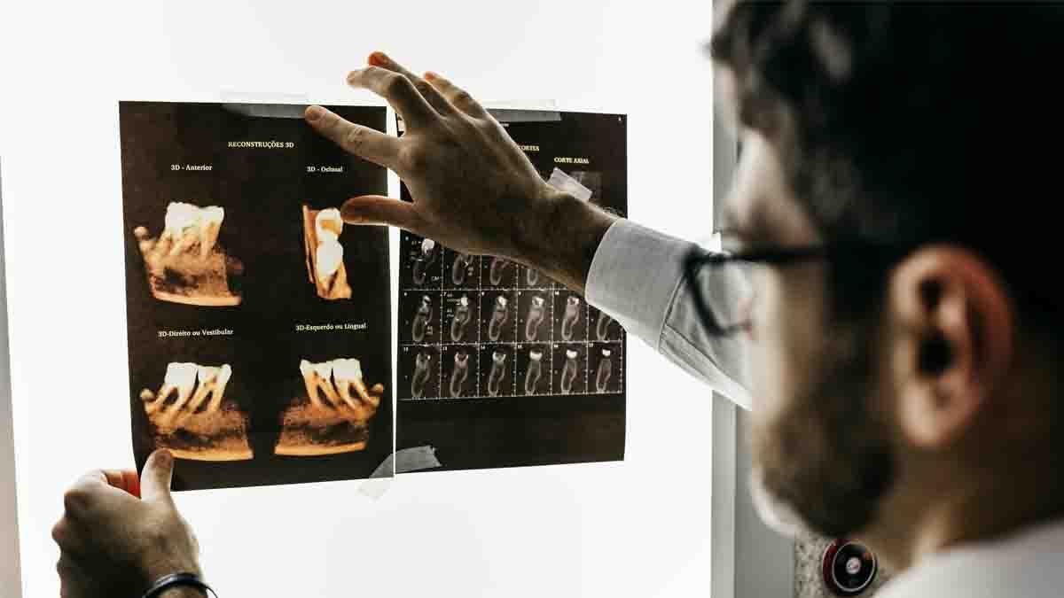 Perito en Periodoncia. Diagnósticos y tratamientos en encías