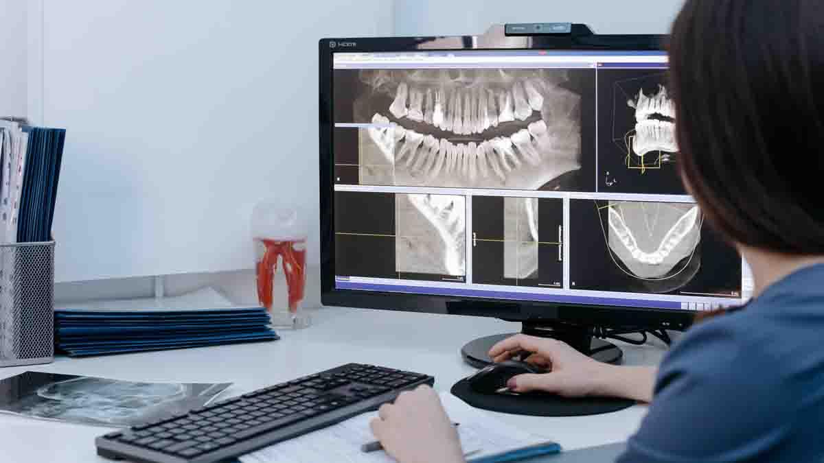 Articulación Temporomandibular (ATM)