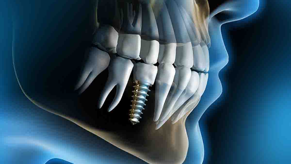 Perito en Implantes Dentales: rechazo, alergias, roturas